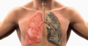 lungs 1 300x157 SİGARA GENLERİNİZİ BOĞUYOR